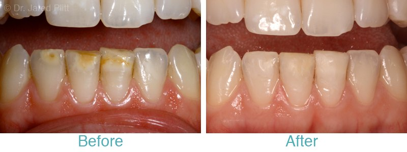 Miami Beach Dental Bonding: Tetracycline Stain Masking