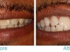 miami-beach-tooth-whitening-1