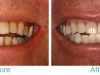 miami-beach-tooth-whitening-2