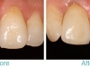 porcelain-crown-miami-beach-cosmetic-before-and-after-closeup